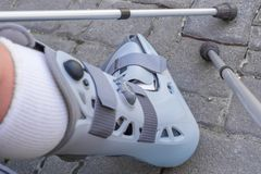 Orthopedic orthosis for immobilizing the lower leg and the foot stock images