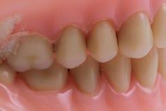 Detail plastic teeth Stock Photography