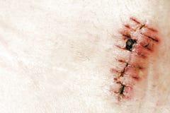 Detail of scar Stock Image