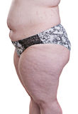 Detail of the side torso girl with obesity Stock Photography