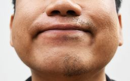 Some mustache after withdrawal mustache on surface young asian man face skin do not take care for a long time Royalty Free Stock Photography