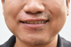 Some mustache after withdrawal mustache on surface young asian man face skin do not take care for a long time. Detail some mustache after withdrawal mustache on Royalty Free Stock Photo