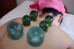Detail van Vrouw met het Tot een kom vormen van de Acupunctuur Behandeling royalty-vrije stock afbeelding
