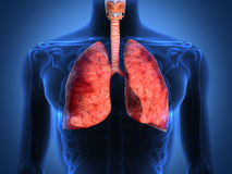 Detail of an x-ray of lungs on black background Royalty Free Stock Photography