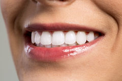 Detail of young womans smile showing white teeth Royalty Free Stock Photography