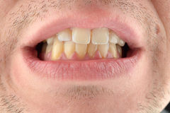 Detailed image of man showing his teeth. Dental health care. Hyg Royalty Free Stock Image