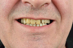 Detailed image of man showing his teeth. Dental health care. Hyg Stock Images