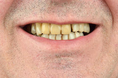Detailed image of man showing his teeth. Dental health care. Hyg Stock Photos