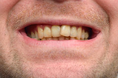 Detailed image of man showing his teeth. Dental health care. Hyg Stock Image