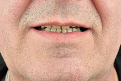 Detailed image of man showing his teeth. Dental health care. Hyg Royalty Free Stock Photography