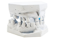 Detailed macro of teeth molding Royalty Free Stock Photos