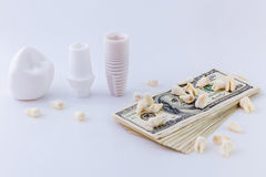 Details of dental implant. The design of dental implant model with pack of dollars and teeth on white background Stock Photo