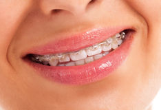 Details of teeth Royalty Free Stock Images