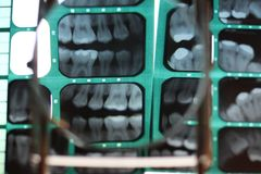 Details of teeth structure and position Stock Image