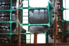 Details of teeth structure and position Royalty Free Stock Image