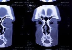 Detalhe da varredura da cabeça do CT Foto de Stock