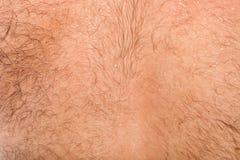 Detalhe de pele na parte traseira do homem Foto de Stock Royalty Free