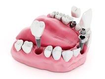 Detalhe do implante dental ilustração royalty free