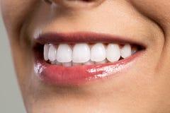 Detalhe do sorriso da jovem mulher que mostra os dentes brancos fotografia de stock royalty free