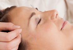 Detalhe facial do tratamento da acupunctura Fotografia de Stock Royalty Free