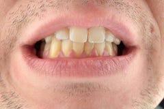 Detaljerad bild av mannen som visar hans tänder Tand- sjukvård Hyg Royaltyfri Bild