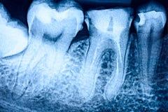 Deterioração de dente no raio X fotografia de stock royalty free