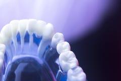 Deterioração dental da saúde do dente fotografia de stock