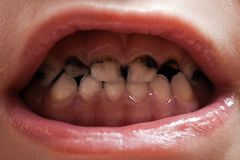 Deterioração de dentes da cárie Fotografia de Stock Royalty Free