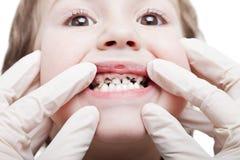 Deterioração de dentes da cárie Imagens de Stock Royalty Free