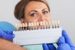 Determinación dental de la sombra foto de archivo libre de regalías