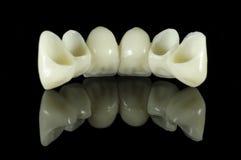 Detrás del puente del diente Imagen de archivo libre de regalías