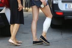 Dettagli di un piede danneggiato e bendato fotografie stock