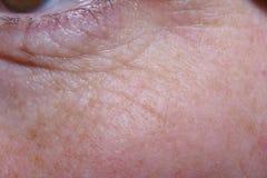 Dettaglio delle borse dell'occhio e grinze di una donna di mezza età immagini stock libere da diritti