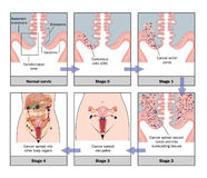 Development of cervical cancer Royalty Free Stock Images
