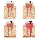 Development of dental caries illustration. Royalty Free Stock Photo
