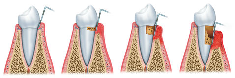 Development of periodontitis Royalty Free Stock Photo