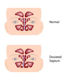 Deviated nasal septum. Normal and Deviated nasal septum Stock Images
