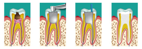 Devitalization. Destruction and removal of the pulp from a tooth Stock Photography