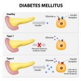 Diabète Photos stock