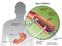 Diabete di tipo 1 illustrazione vettoriale