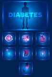 Diabetes affected organs Royalty Free Stock Photography