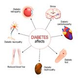 Diabetes Affects. Complications of diabetes mellitus stock illustration