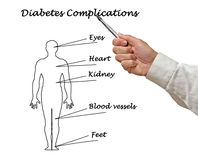 Diabetes complications. Presenting diagram of diabetes complications royalty free stock photo