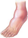 Diabetes - descenso diabético de la enfermedad arterial y del pie Fotografía de archivo libre de regalías