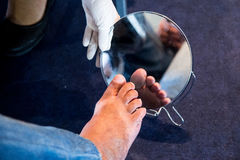 Diabetes foot royalty free stock photos