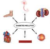 Diabetes mellitus stock de ilustración