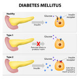 Diabetes mellitus ilustração stock