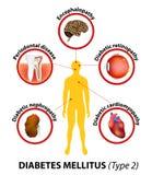 Diabetes mellitus complicaciones a largo plazo ilustración del vector