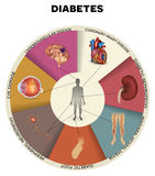Diabetes mellitus info graphic. Diabetes complications detailed info graphic. Affected organs by diabetes, beautiful colorful design Stock Photos