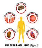 Diabetes mellitus. long-term complications vector illustration